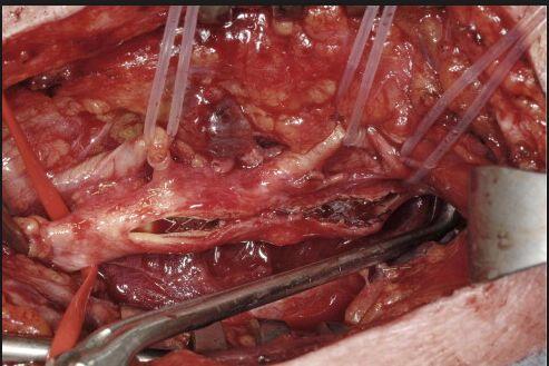 Neuromonitoring Carotid Endarterectomy Surgeries