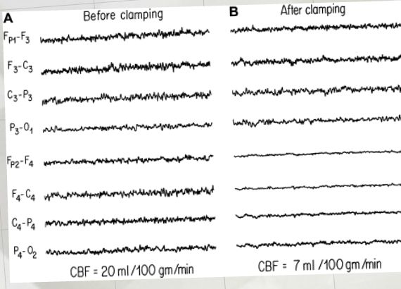 Neuromonitoring Carotid Endarterectomy Procedures
