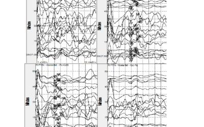 How To Handle Variable Intraoperative Somatosensory Evoked Potentials