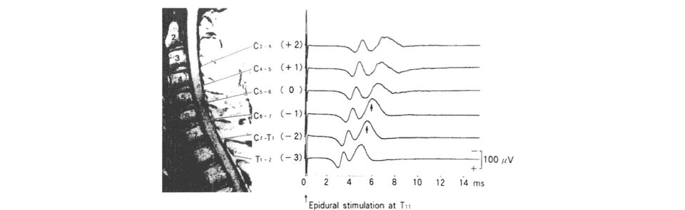 Variability In Somatosensory Evoked Potential Test: Summing It Up