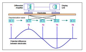 EMG dipole