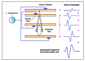EMG distance to electrode