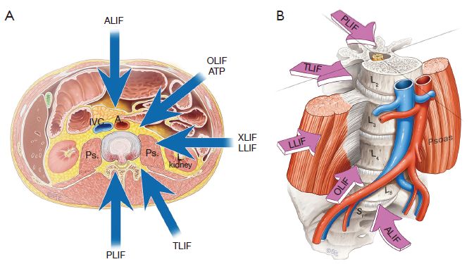 saphenous ssep during transpsoas lateral interbody fusion,