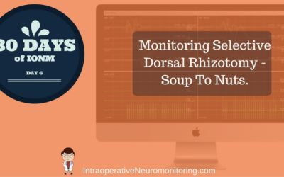 Monitoring For Selective Dorsal Rhizotomy – Soup To Nuts