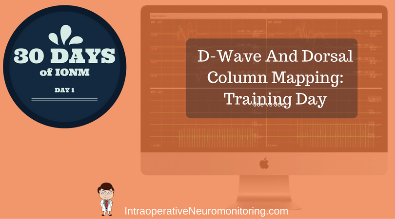 Training Day: How To Do A D-wave And Dorsal Column Mapping Case