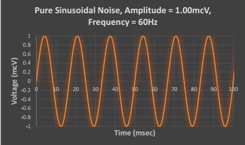 neuromonitoring noise