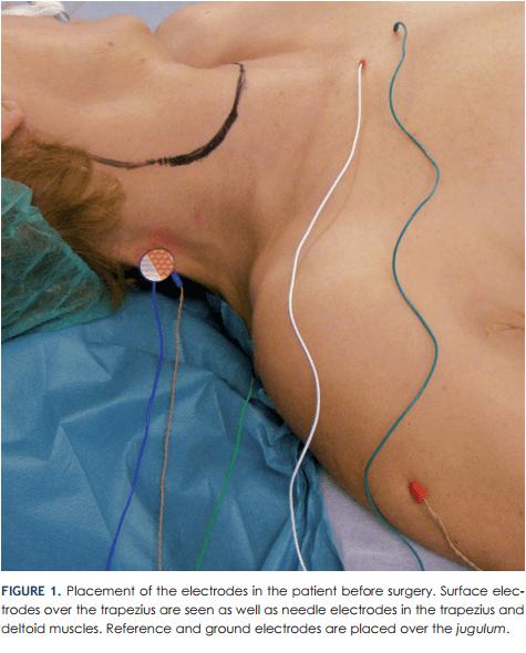 trapezius EMG